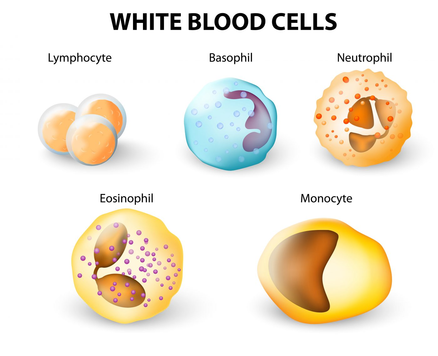 study of white blood cells Va researchers and colleagues in iowa showed in a lab study how neutrophils—the most common type of white blood cell—undergo changes when infected by the common pathogen h pylori.