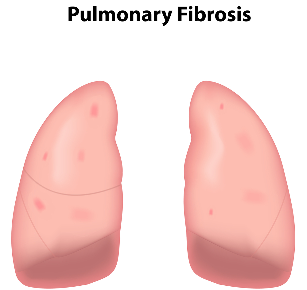 Fibrosis Natural Treatment