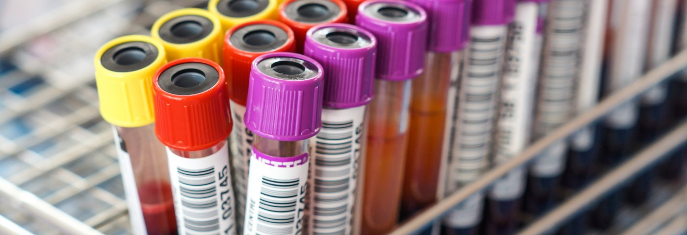 Potential IPF Disease Biomarkers Seen in Patients' Blood