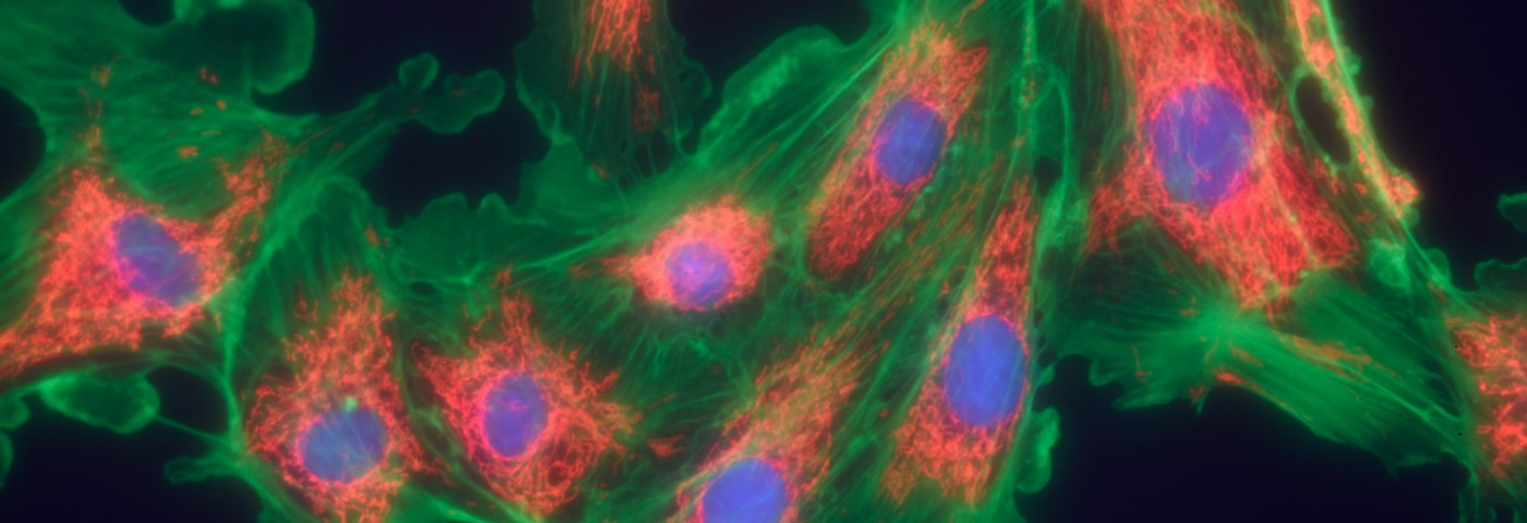 Fibrotic Pathways in IPF May Have a Common Protein and New Treatment Target