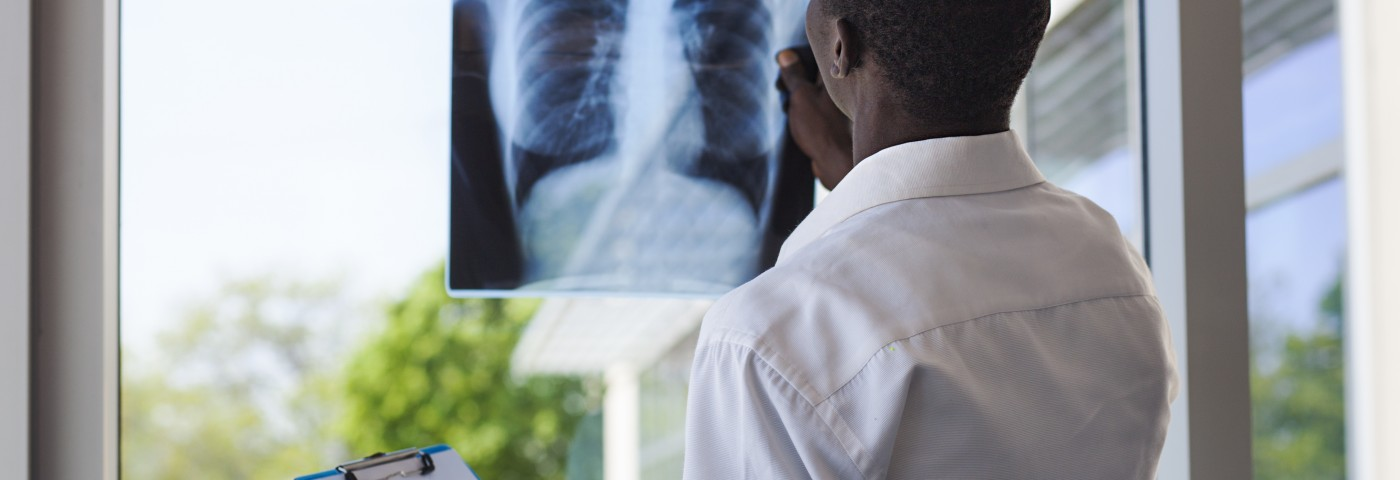 Donor Lungs Ready for Transplant Is Goal of Toronto Start-up Supported by $2.6M from XENiOS