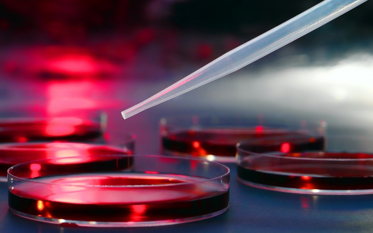 stem cell therapies and PF