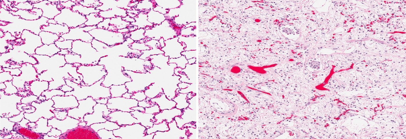 Small Peptide Shows Promise in Reducing Lung Fibrosis in a Mouse Model