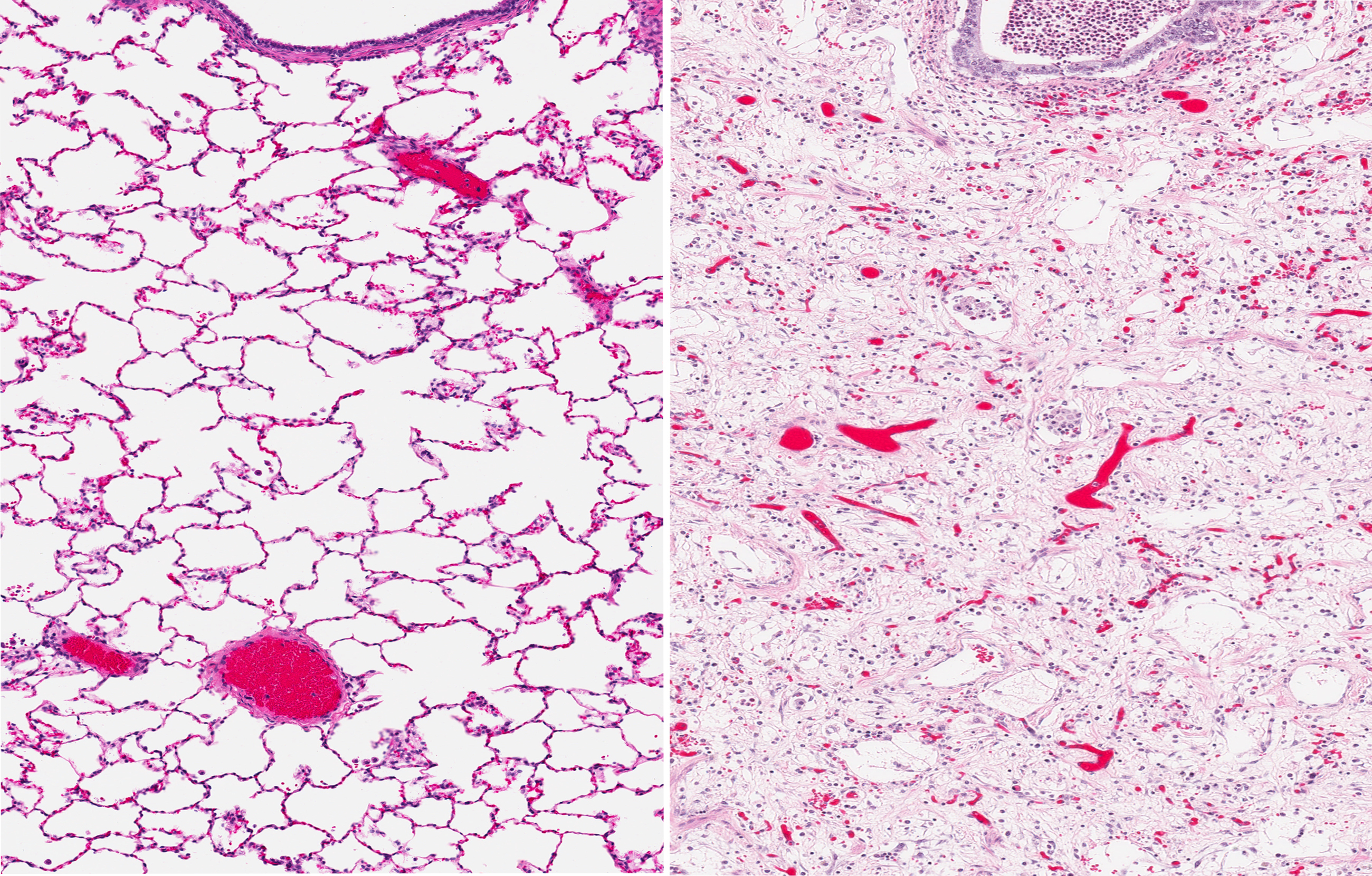 lung fibrosis in mouse model