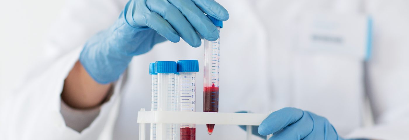 Blood Growth Factor in IPF Seen as Potential Biomarker of Treatment Effectiveness
