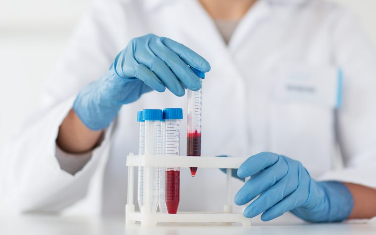 IPF blood biomarkers