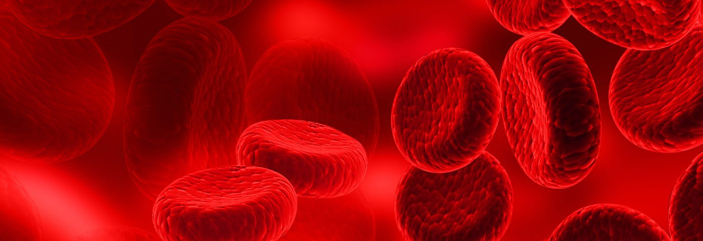 Anticoagulant Seen to Improve Survival in Lung Fibrosis Patients During Flares
