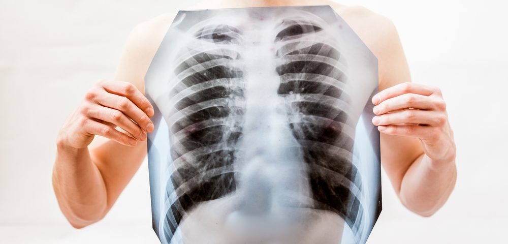 Software Detects 'Molecular Signatures' in Development of Lung and Liver Fibrosis