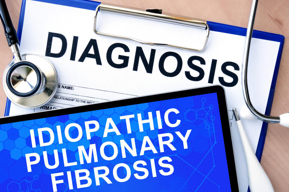 Patients with idiopathic pulmonary fibrosis have a high risk of developing other health conditions.