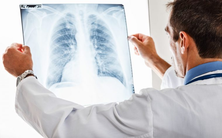 Esbriet and bleomycin-induced lung disease