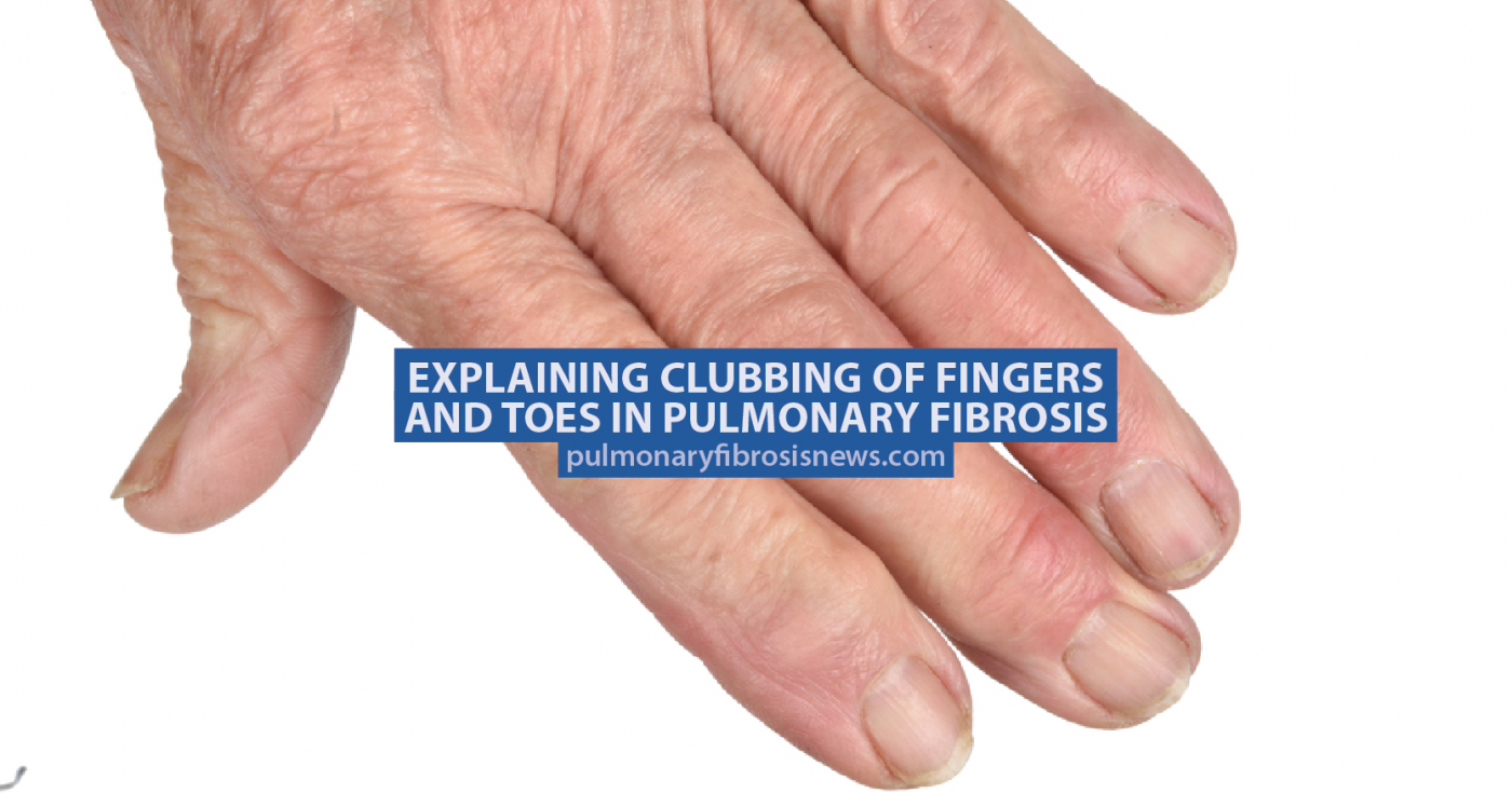 Explaining Clubbing of Fingers and Toes in Pulmonary Fibrosis ...