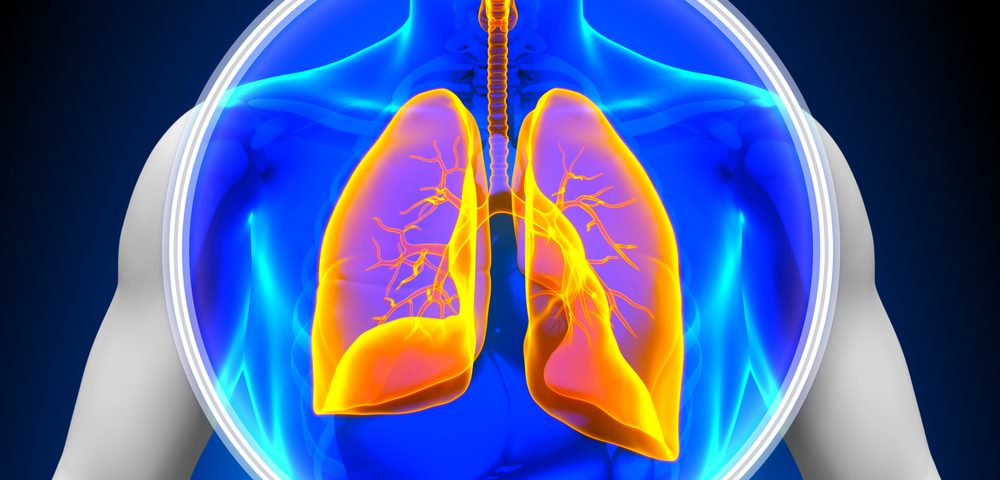 Lung Transplant Can Benefit Those with PF-Linked Hermansky-Pudlak Syndrome, Study Reports