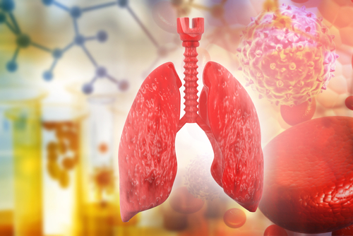 Stem Cells Appear to Play a Role in Blood Vessel Problems Associated with Lung Disease