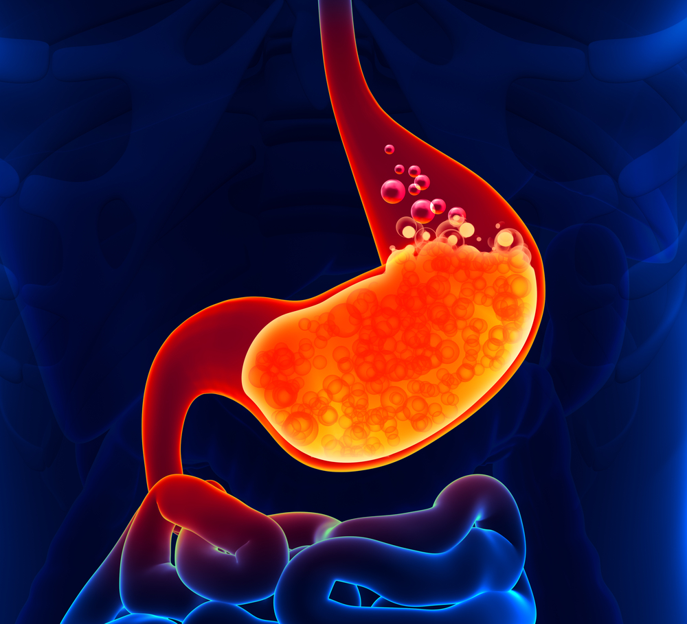 acid reflux and IPF, surgery