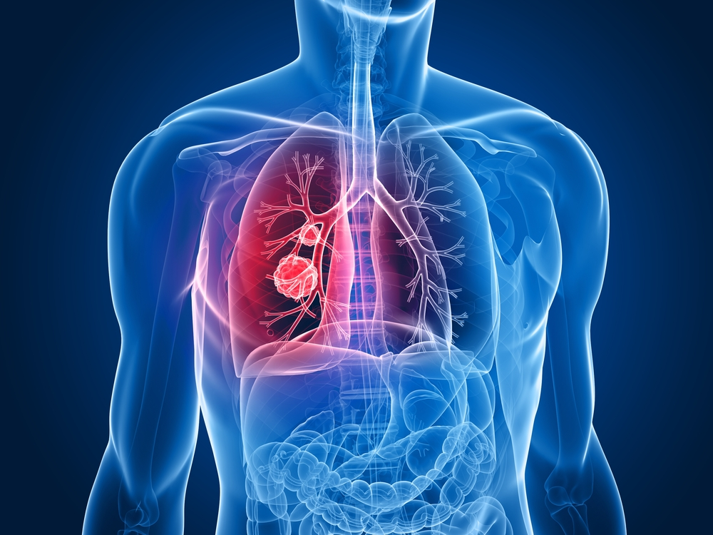 Ofev for IPF lung cancer