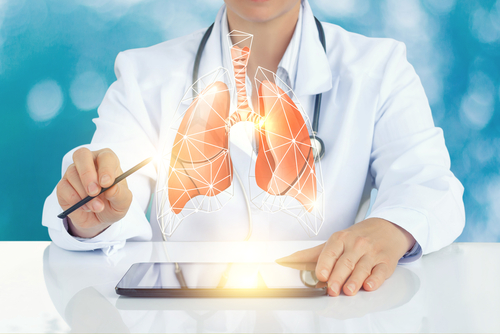 Ofev Prevented Lung Cancer Progression in IPF Patient, Case Report Shows
