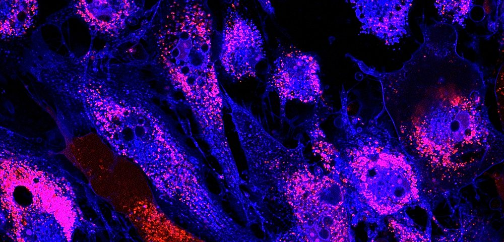 2 Distinct Groups of Lung Cells Seen to Play 'Good' and 'Bad' Roles in Diseases Like IPF