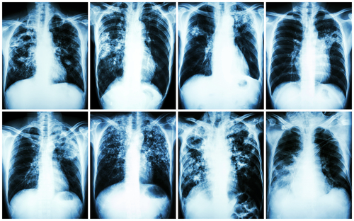 Tracleer in pulmonary hypertension secondary to idiopathic pulmonary fibrosis
