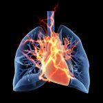 New lung transplant program