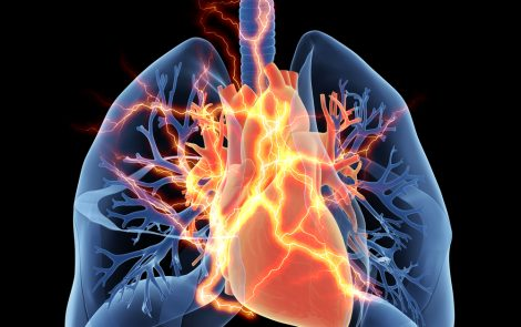 Double Lung Transplant Better for Pulmonary Fibrosis Patients Younger than 70, Study Shows