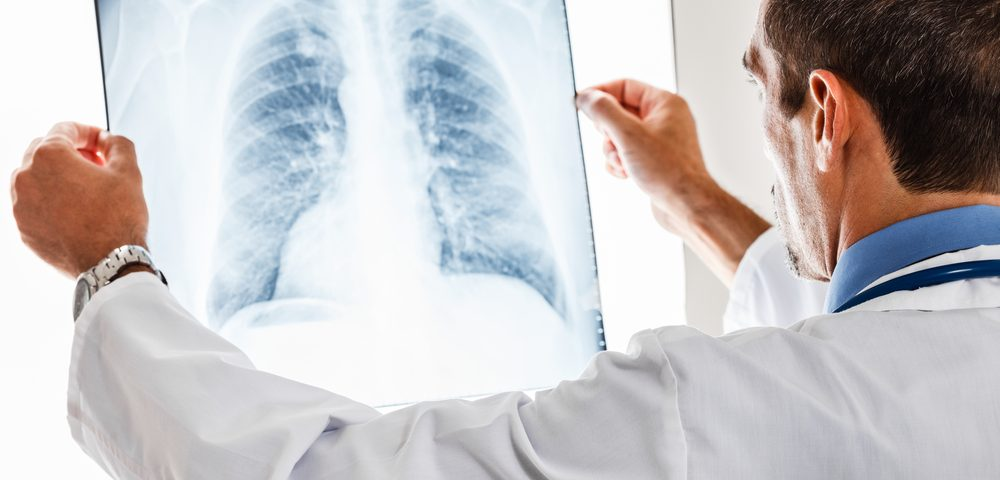 Lung Cancer in IPF Patients Best Treated on 'Do No Harm' Basis, Commentary Argues