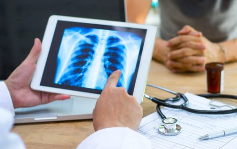 Lung Cancer, Acute Flares Predict Mortality in CPFE Patients, Study Shows