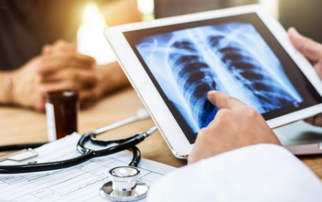 Repeated Lung Cancer Surgery in IPF Patients May Worsen Outcomes