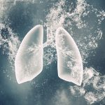 diabetes and lung fibrosis