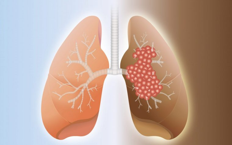 lung cancer risk IPF