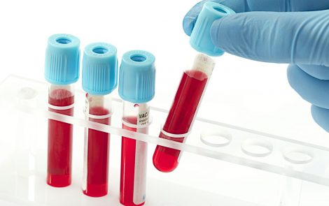 Blood Levels of Antioxidant Protein May Serve as IPF Biomarker