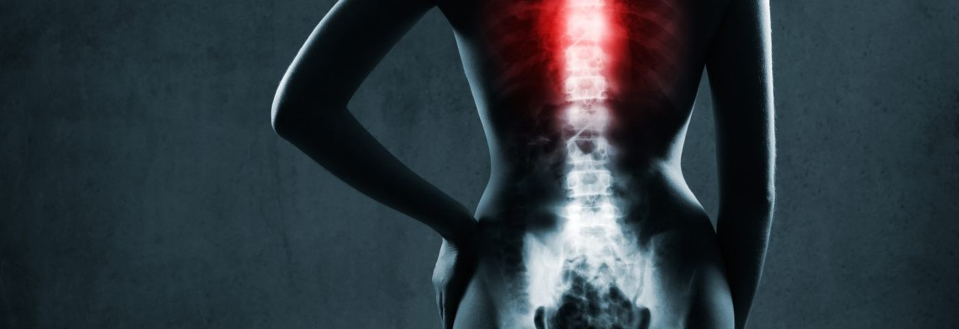 Back Muscle Shrinkage Tied to Poor IPF Outcomes, Study Finds
