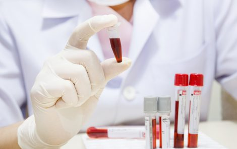 KL-6 Protein Found to Be a Promising Biomarker for IPF Prognosis