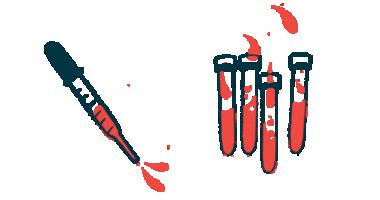 IPF progression | Pulmonary Fibrosis News | testing blood samples