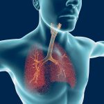 PF breathing exercises | Pulmonary Fibrosis News | lung health